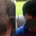 implante capilar en Colombia