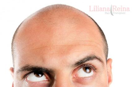 Implante Capilar, Transplante De Cabello, Calvicie