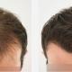 FUE tecnica trasplante de cabello