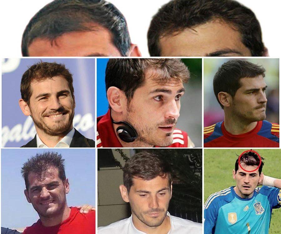 Iker Casillas trasplante capilar