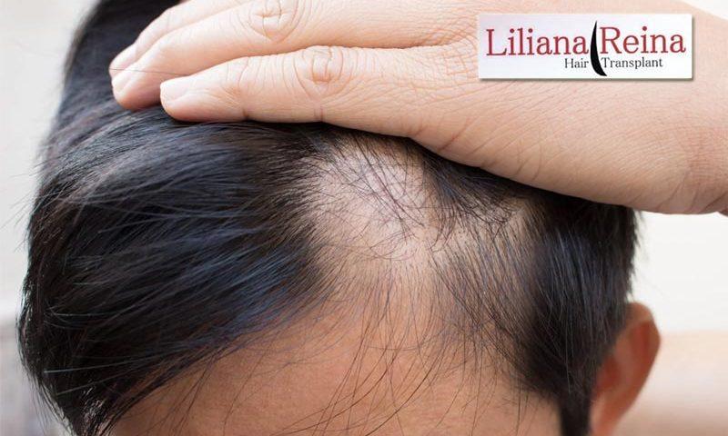Señales de Alopecia