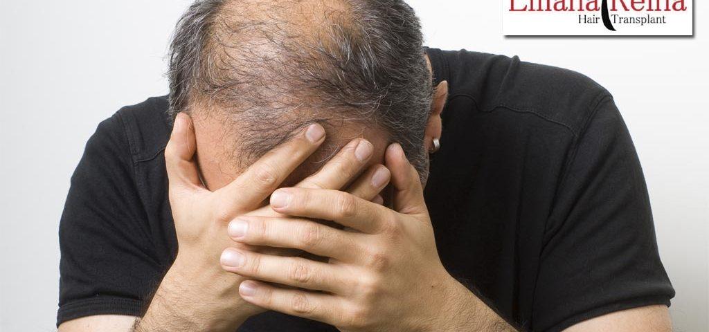 Depresión y pérdida de cabello