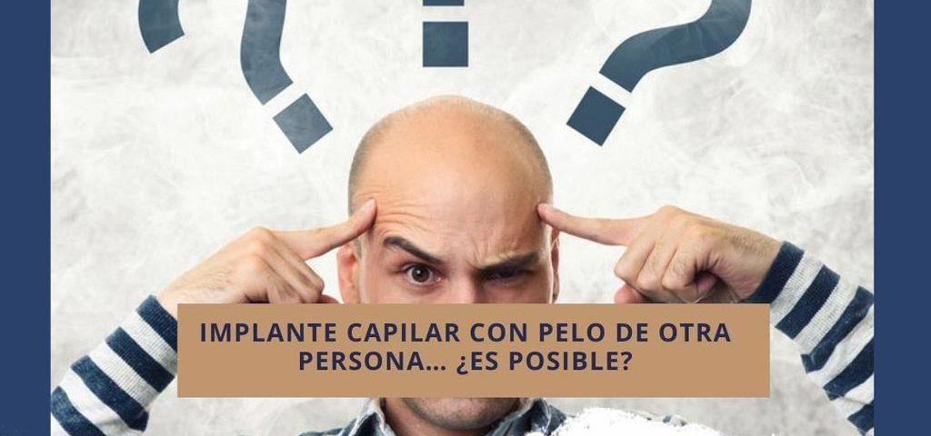 Implante capilar en Cali Colombia con pelo de otra persona… ¿es posible?