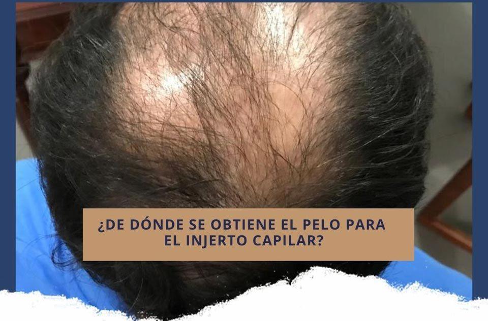 Trasplante de pelo: ¿De dónde se obtiene el pelo para el injerto?