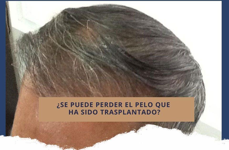 Implante de cabello: ¿Se puede perder el pelo que ha sido trasplantado?
