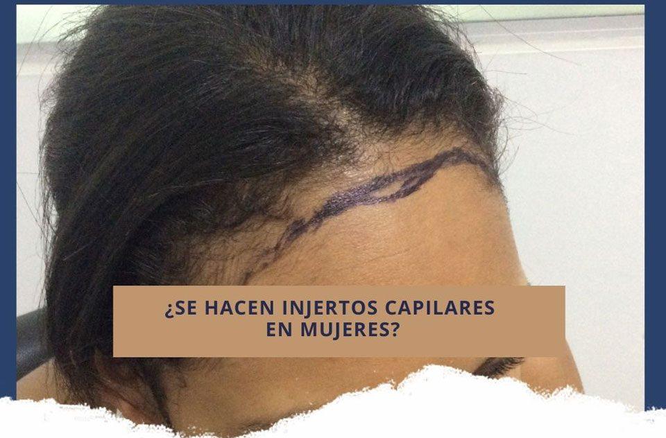 ¿Se hacen injertos capilares en mujeres?