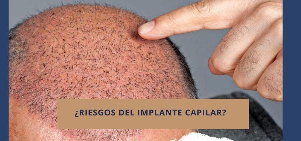 ¿Riesgos del implante capilar?