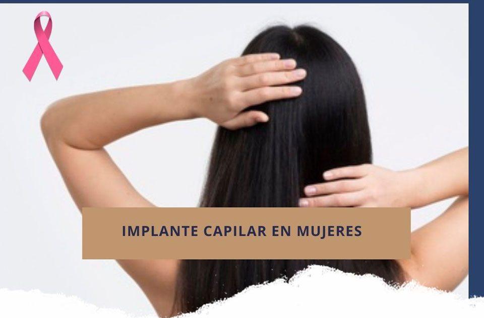Implante capilar en mujeres
