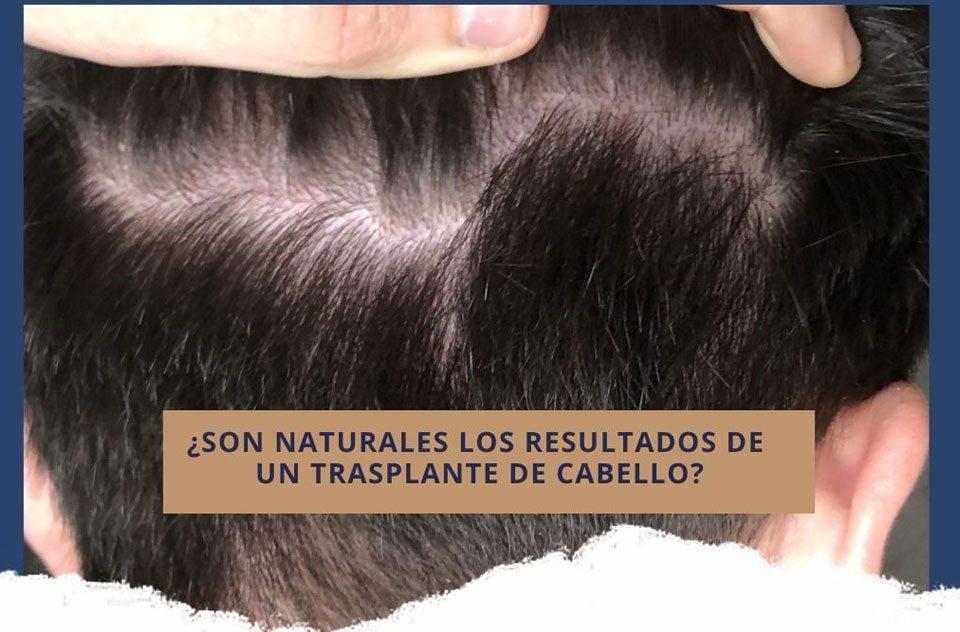 ¿Son naturales los resultados de un trasplante de cabello?