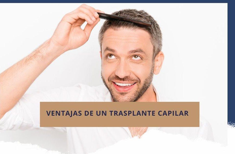 Ventajas de un trasplante capilar