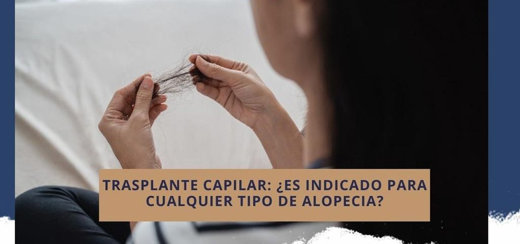 Trasplante capilar: ¿es indicado para cualquier tipo de alopecia?