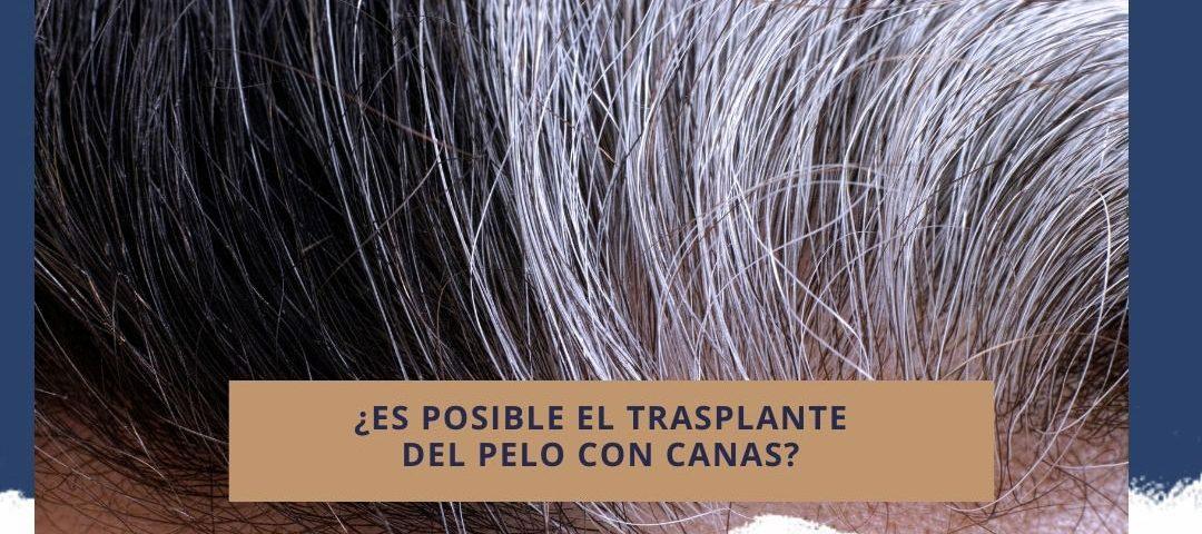 ¿Es posible el trasplante del pelo con canas?