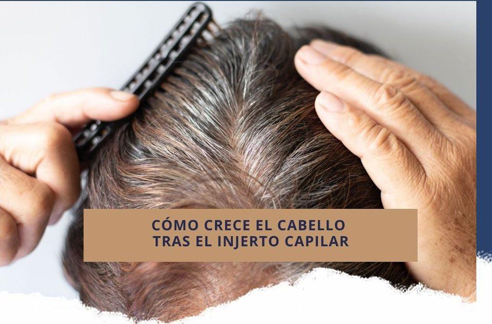 Cómo crece el cabello tras el injerto capilar