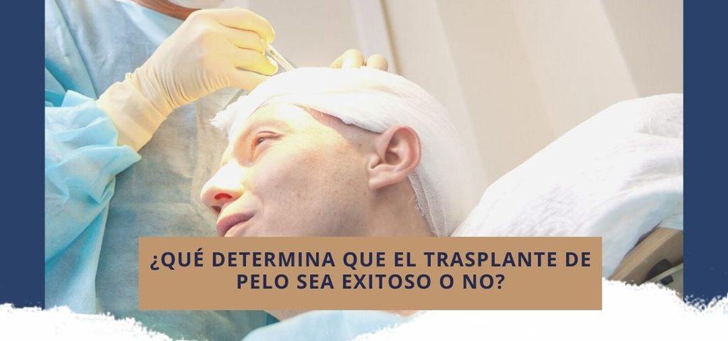 ¿Qué determina que el trasplante de pelo sea exitoso o no?