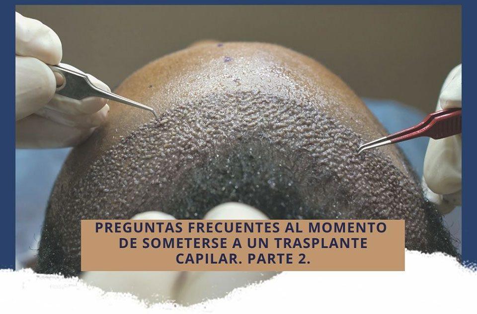 Preguntas frecuentes al momento de someterse a un trasplante capilar en Cali. Parte 2