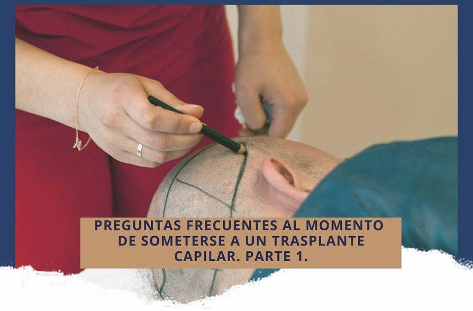 Preguntas frecuentes al momento de someterse a un trasplante capilar. Parte 1