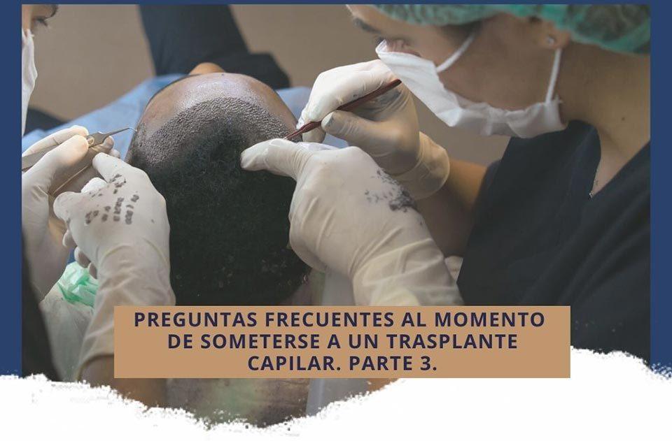 Preguntas frecuentes al momento de someterse a un trasplante capilar en Cali. Parte 3