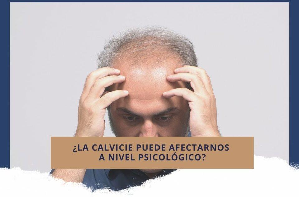 ¿La calvicie puede afectarnos a nivel psicológico?
