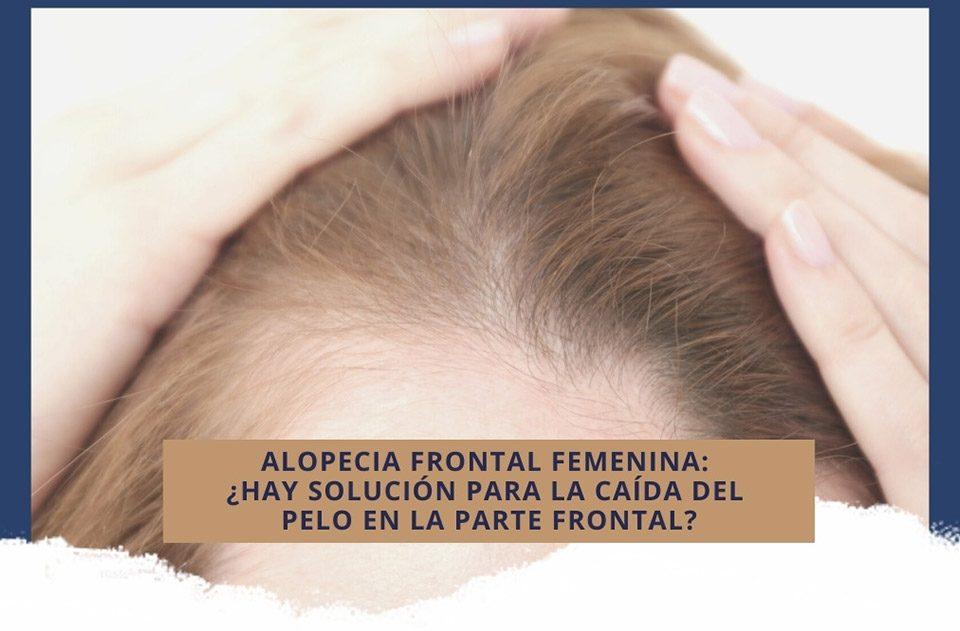 Alopecia frontal femenina