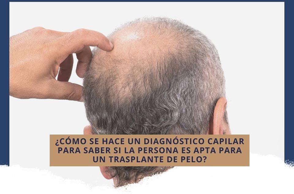 ¿Cómo se hace un diagnóstico capilar para saber si la persona es apta para un trasplante de pelo?