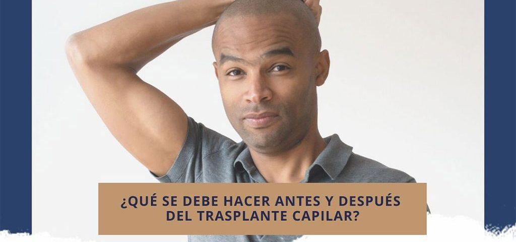 ¿Qué se debe hacer antes y después del trasplante capilar?