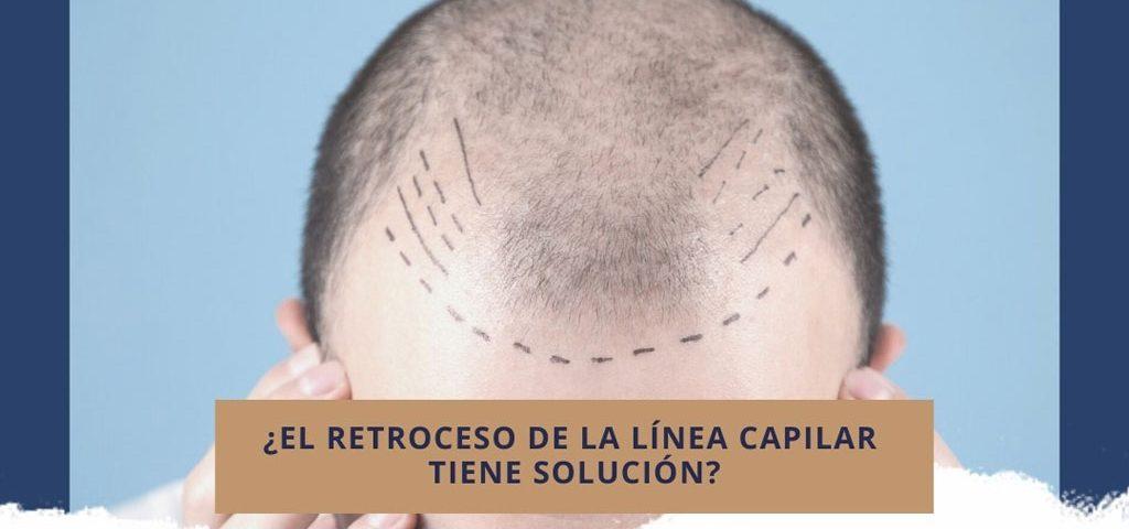 ¿El retroceso de la línea capilar tiene solución?