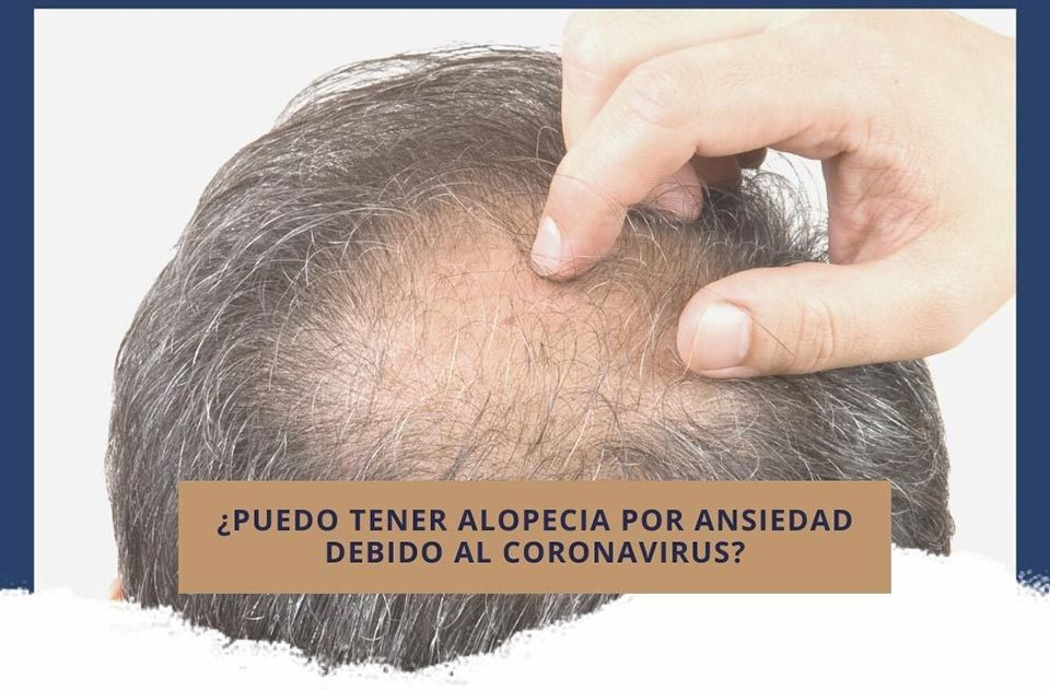 ¿Puedo tener alopecia debido a la ansiedad que genera el coronavirus?