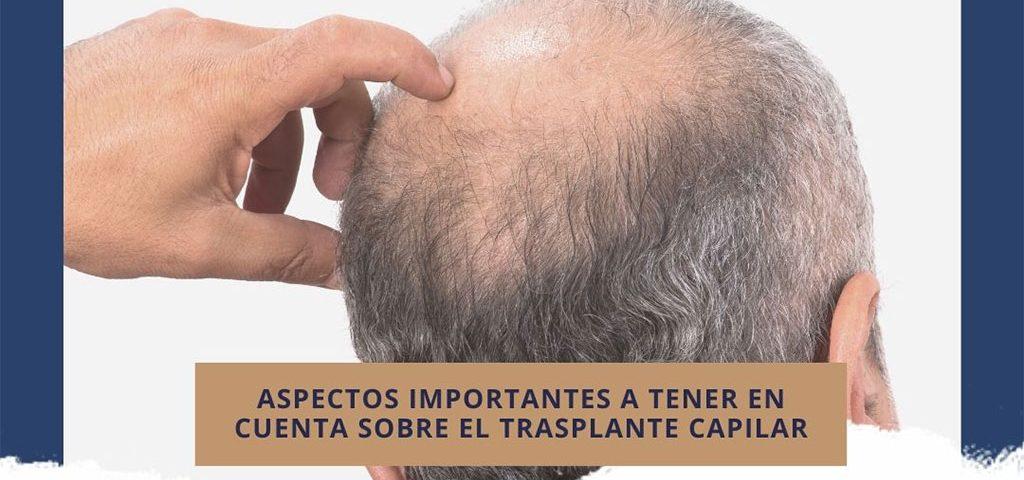 Aspectos importantes a tener en cuenta sobre el trasplante capilar
