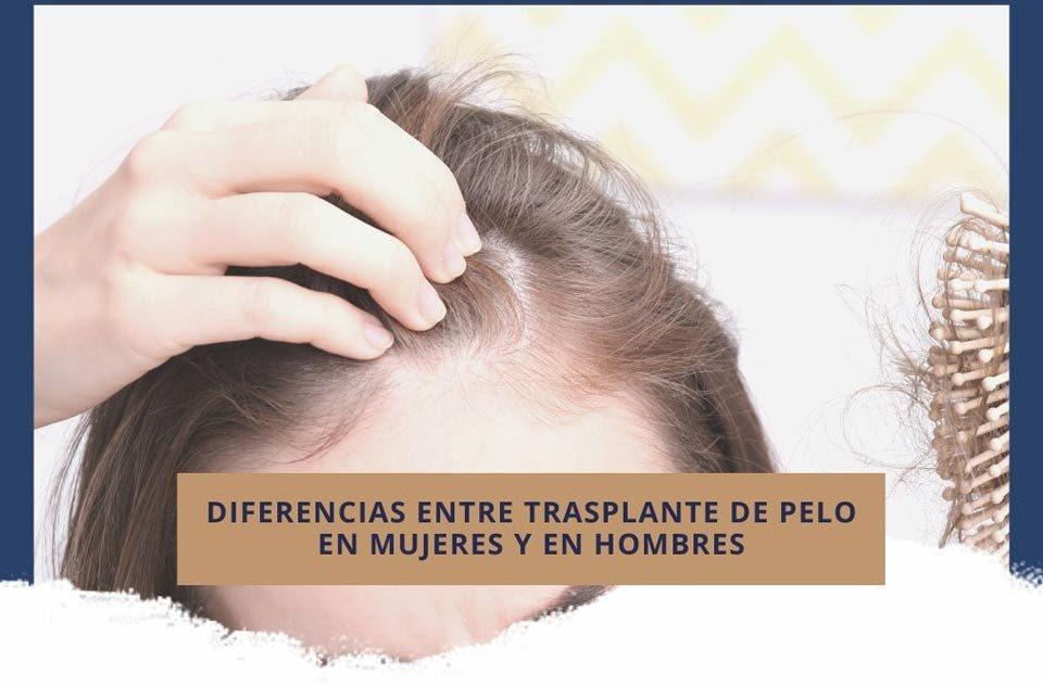 Diferencias entre trasplante de pelo en mujeres y en hombres