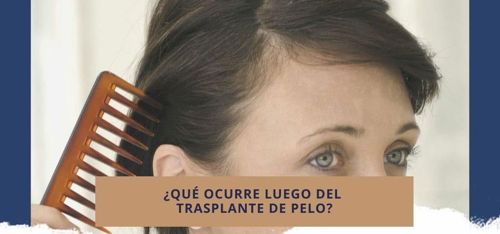 ¿Qué ocurre luego del trasplante de pelo?