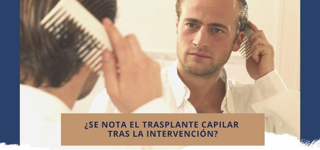 ¿Se nota el trasplante capilar tras la intervención?