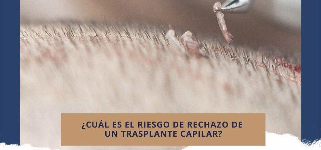 ¿Cuál es el riesgo de rechazo de un trasplante capilar?