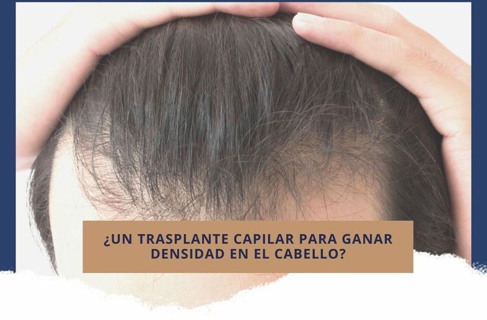 ¿Un trasplante capilar para ganar densidad en el cabello?