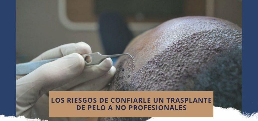 Los riesgos de confiarle un trasplante de pelo a no profesionales