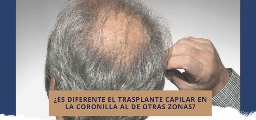 ¿Es diferente el trasplante capilar en la coronilla al de otras zonas?