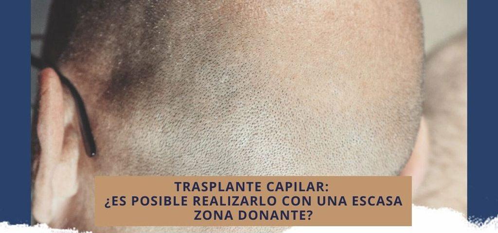 Trasplante capilar: ¿Es posible realizarlo con una escasa zona donante?