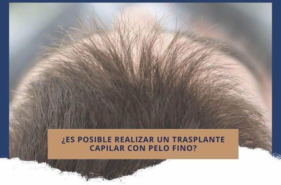 ¿Es posible realizar un trasplante capilar con pelo fino?