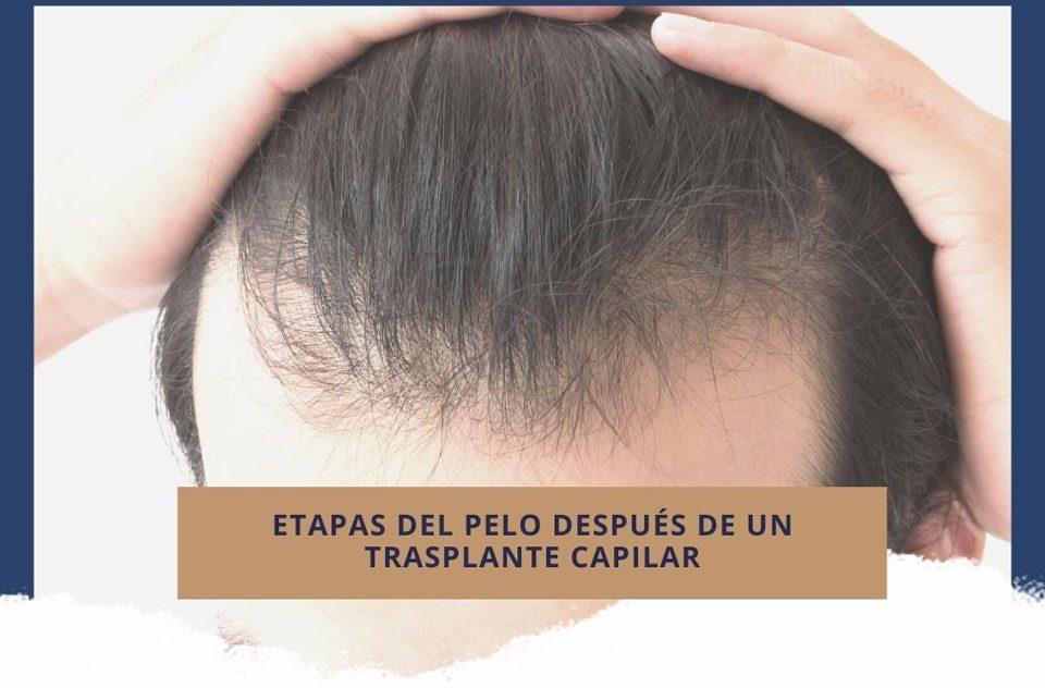 Etapas del pelo después de un trasplante capilar