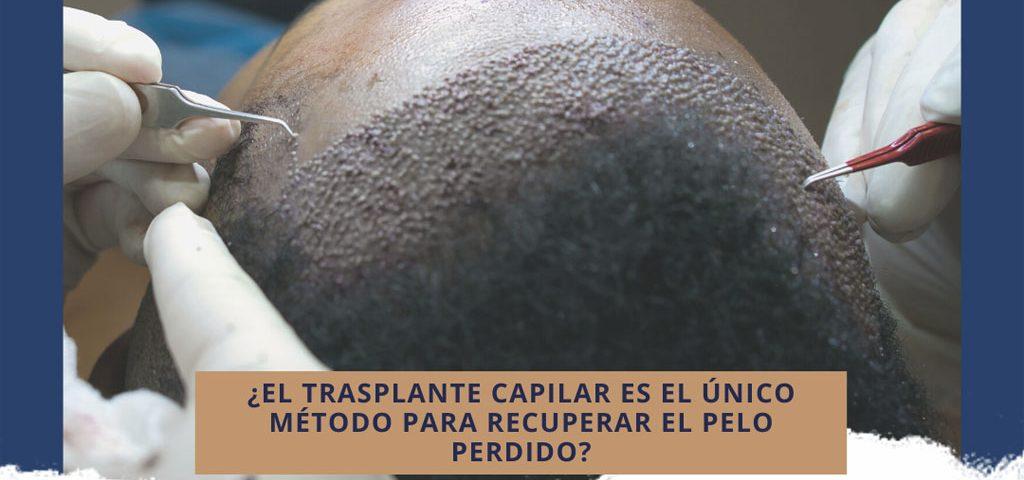 ¿El trasplante capilar es el único método para recuperar el pelo perdido?