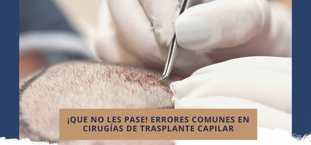 ¡Que no les pase! Errores comunes en cirugías de trasplante capilar