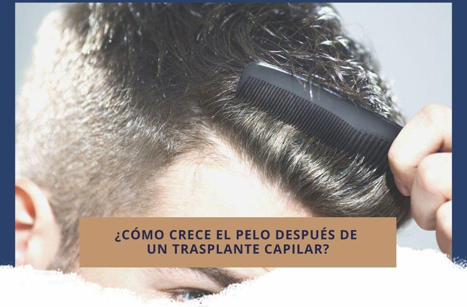 ¿Cómo crece el pelo después de un trasplante capilar?