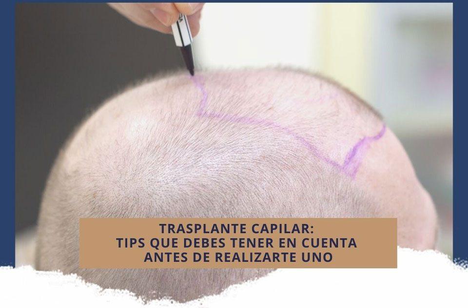 Trasplante capilar: tips que debes tener en cuenta antes de realizarte uno
